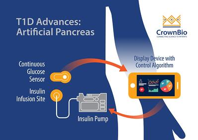 Prtificial pancreas system for automated diabetes treatment in T1D