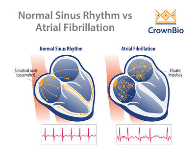diagram displaying normal heart rhythm and heartbeat trace versus atrial fibrillation and abnormal heartbeat