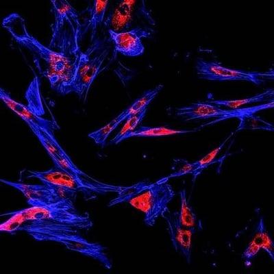 Bioluminescent Imaging of Tumor Models