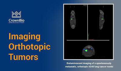 Bioluminescent imaging of a spontaneously metastatic, orthotopic tumor model, the A549 lung cancer model