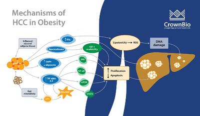 graphic explaining the mechanisms of hepatocellular carcinoma development comorbid with obesity