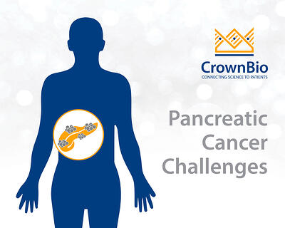 graphic of pancreatic cancer tumors
