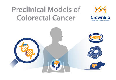 tumor organoids provide a new preclinical option for colorectal cancer and specific disease mutations modeling