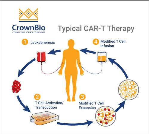 Post FDA Approval: CAR-T Therapy Key Facts