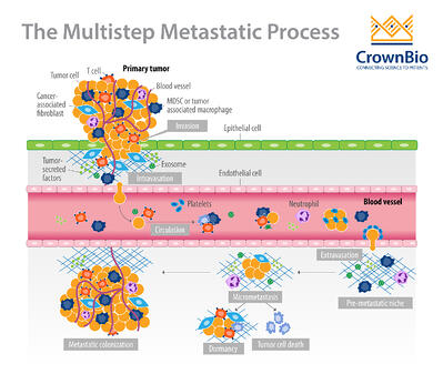 diagram of the multistep process of tumor metastasis