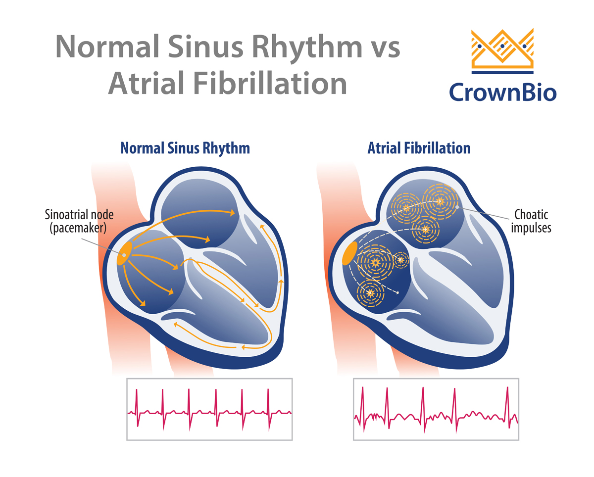 New Biomarkers to Detect Atrial Fibrillation
