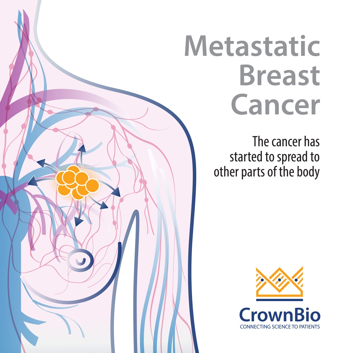 Why PDX Are Needed for Metastatic Breast Cancer Research