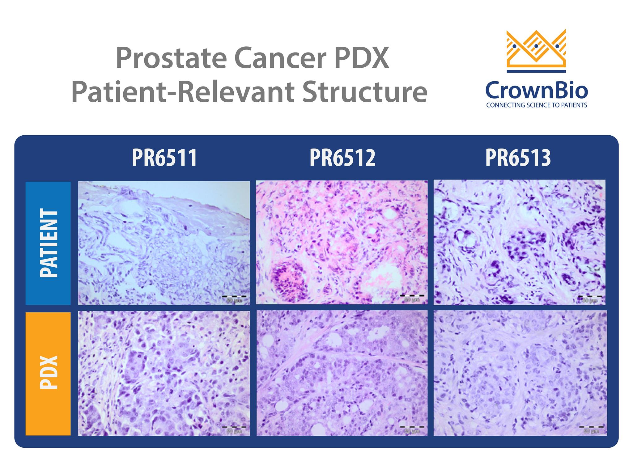 immunohistochemistry images showing that prostate cancer pdx models retain the structure of original patient tumors