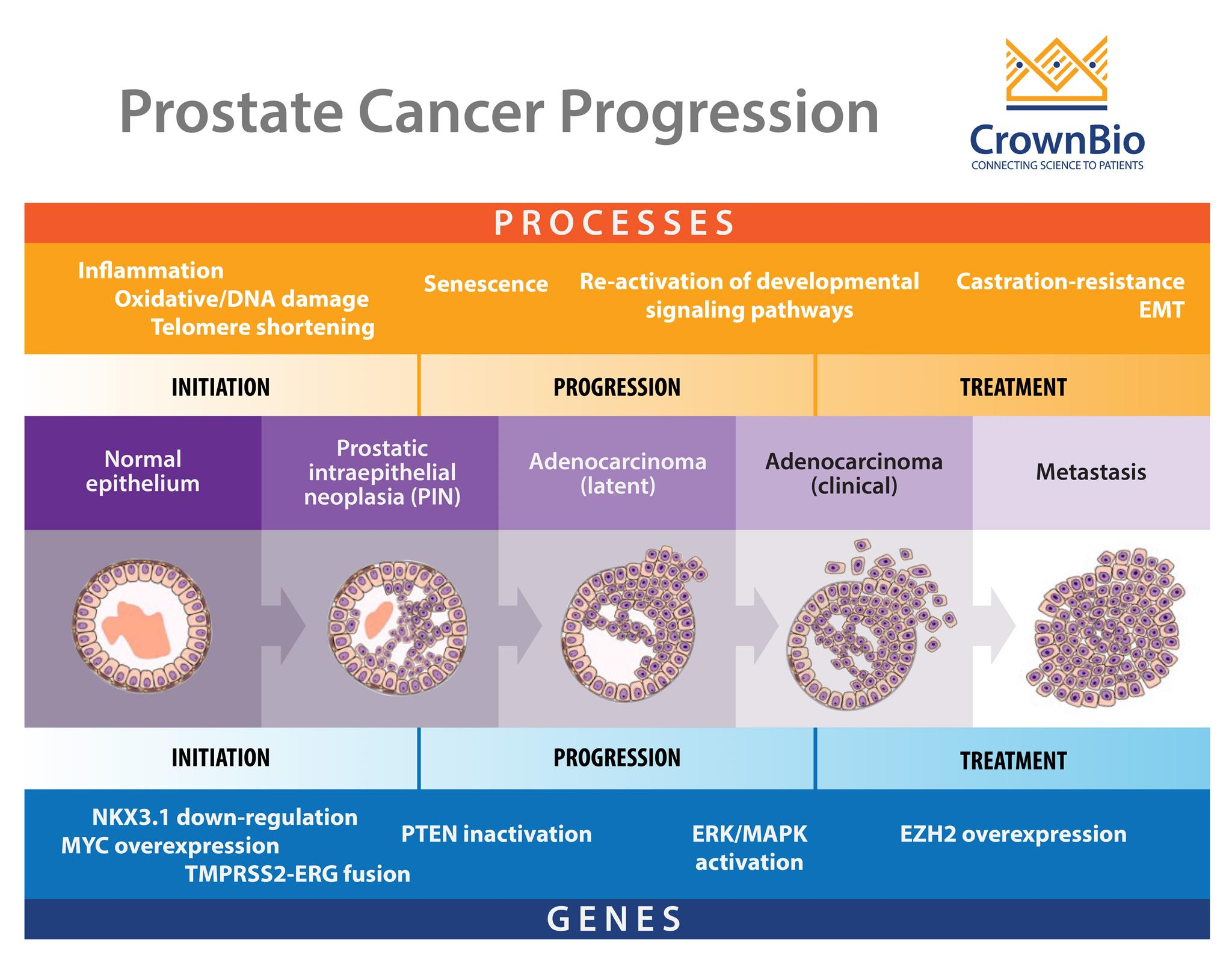 Why Are Prostate Cancer Preclinical Models Hard to Develop?
