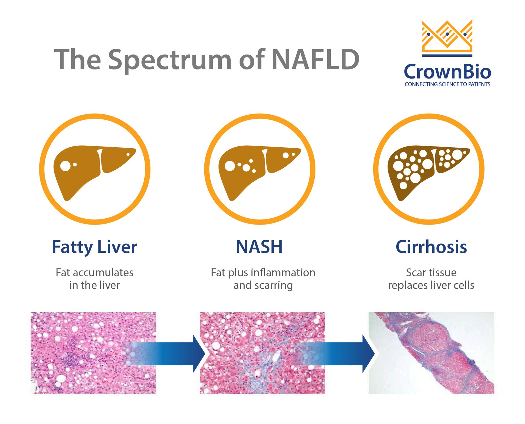 fatty liver progression, NAFLD progression to NASH, NASH diagnosis techniques, noninasive NASH diagnosis